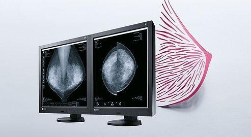 monitor%20mamografia%20eizo_edited.jpg