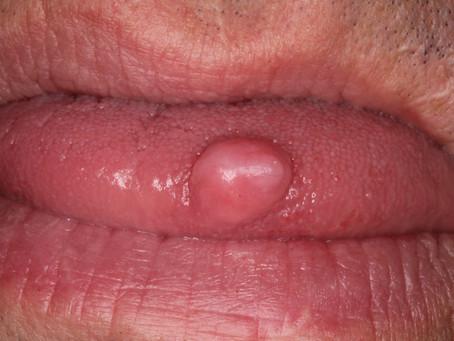 Fibroma Removal