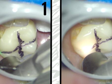 Solea laser vs. emax crown