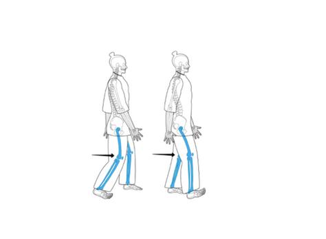 ¿Cómo mejorar la forma de caminar?