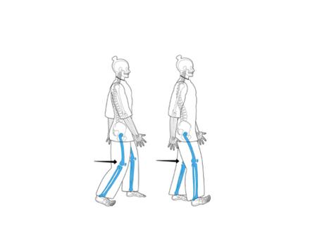 Capítulo 2 : ¿Cómo mejorar la forma de caminar?