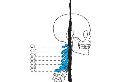 Recomendaciones para tratar y prevenir dolores en el cuello