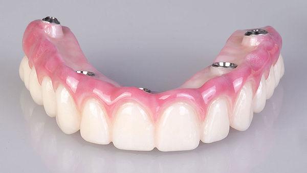 dentadura-fixa-protocolo-implantes.jpg