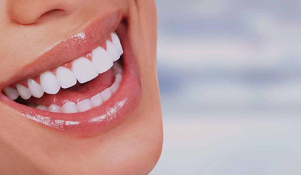 elevare_lentes_de_contato_dental.jpg