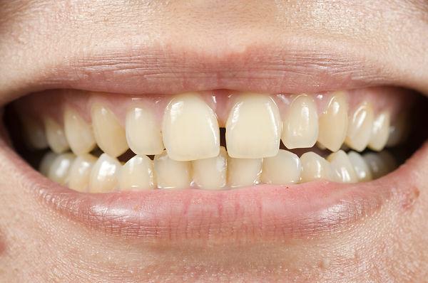 dentes-amarelos1.jpg