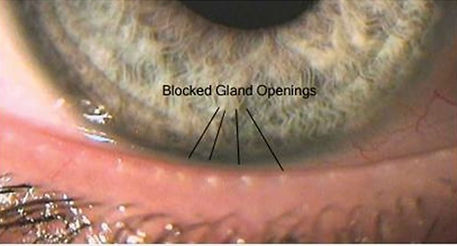 blocked oil glands