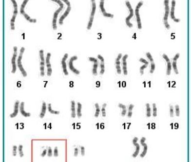 Gene Inhibition:  An Answer for People with Down Syndrome?