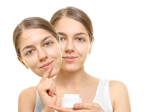Acne Face Cream