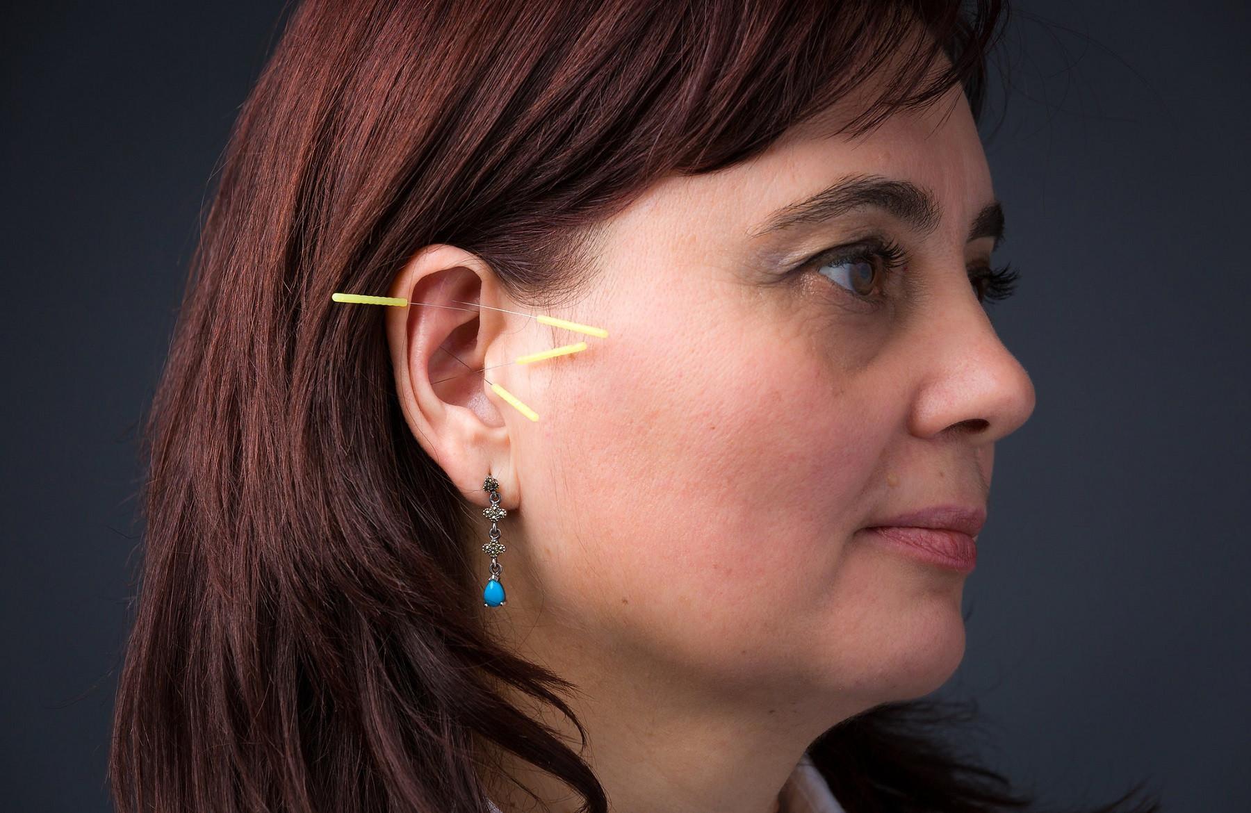 Acu-Detox Acupuncture