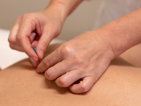 What Makes 5 Elements Acupuncture Unique and Successful