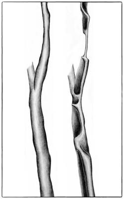 Mechanics of tracheal collapse