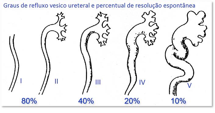 Refluxo vesico ureteral