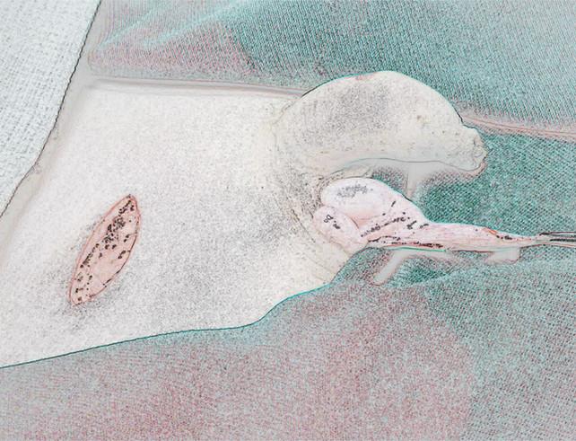 Orquidopexia 14.jpg