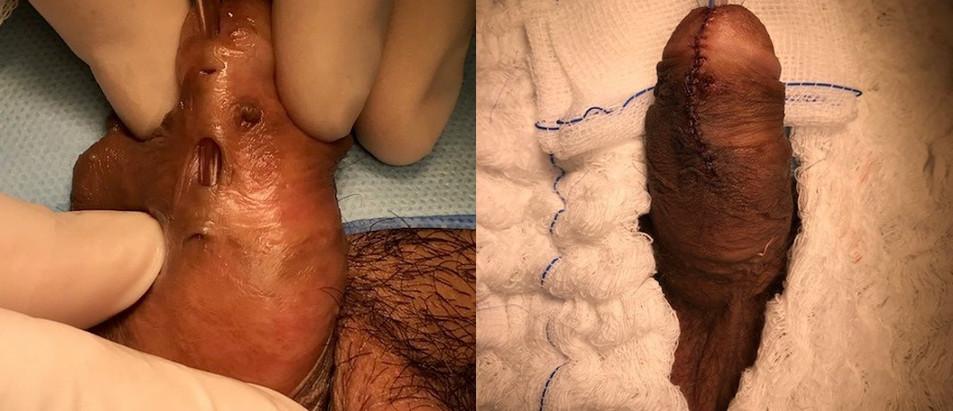 Adolescente apresentado múltiplas fístulas uretrais após cirúrgia prévia de hipospádia. Aspecto da correção cirúrgica.
