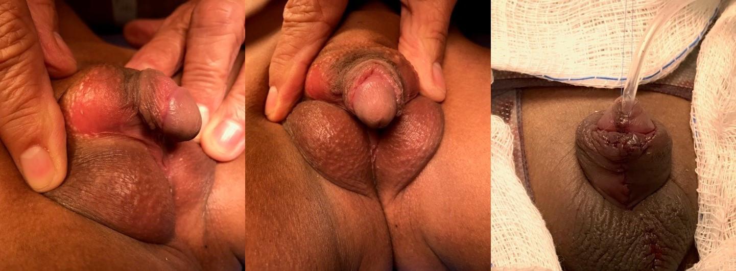 Paciente com hipospádia perineal, severa curvatura ventral do pênis e bolsa escrotal bífida. Correção cirúrgica num único estágio.