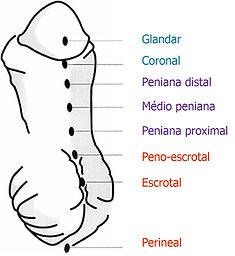 esquema do grau de hipospadia.jpg