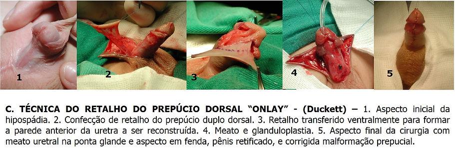hipospadia - Dr. Domingos Bica