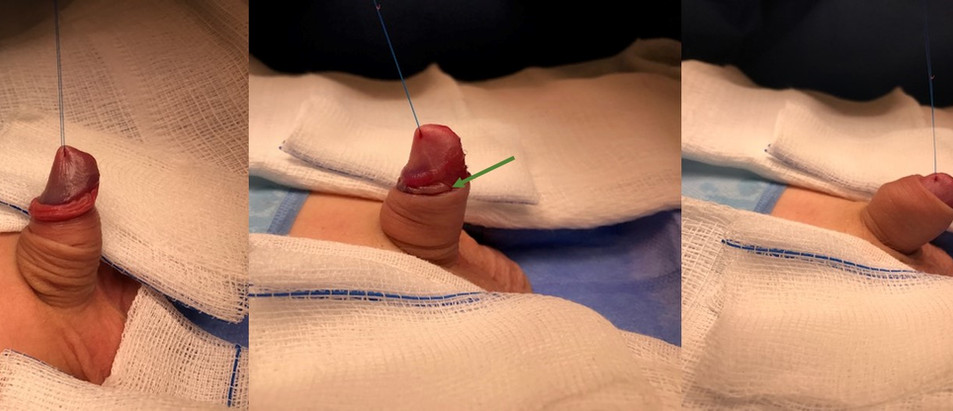 """Paciente submetido a postectomia clássica com pontos """"internos"""""""