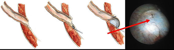 Correção endoscópica do refluxo vesico ureteral com Deflux