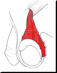as varicoceles desaparecem após a puberdade