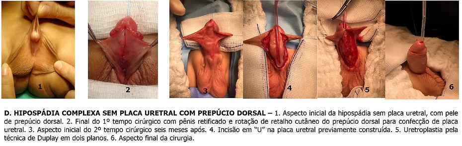 hipospadia complexa - Dr. Domingos Bica