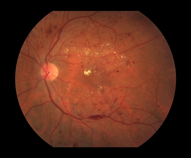 c0272524-diabetic-retinopathy-nonproliferative-science-photo-library-high.jpg