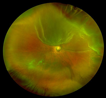 Color-Montage-Retinal-Detachment-California-Courtesy-J-Edward-Ysasaga-MD_result.jpg