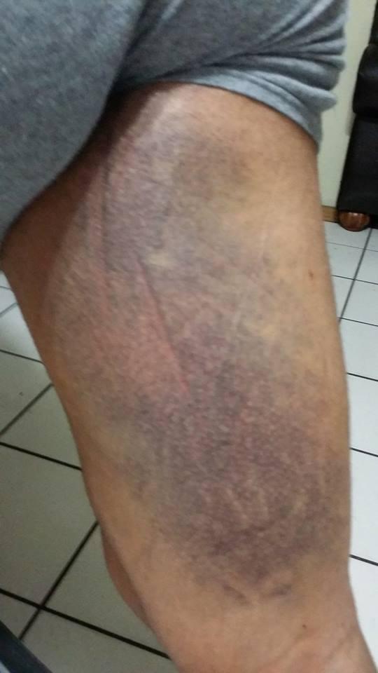 Dillon Cleckler hamstring injury