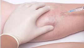 cirurgia_vascular_e_endovascular_clinica