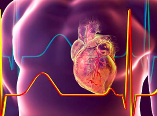 Manejo de síndromes coronarios agudos sin elevación del segmento ST (ESC)