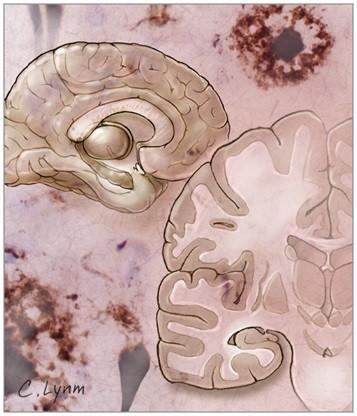 Alzheimer puede transmitirse de persona a persona