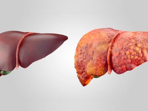 Enfermedad de hígado graso no alcohólico diagnóstico y tratamiento tempranos