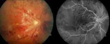 Isquemia retiniana subclínica en enfermedades cardiovasculares