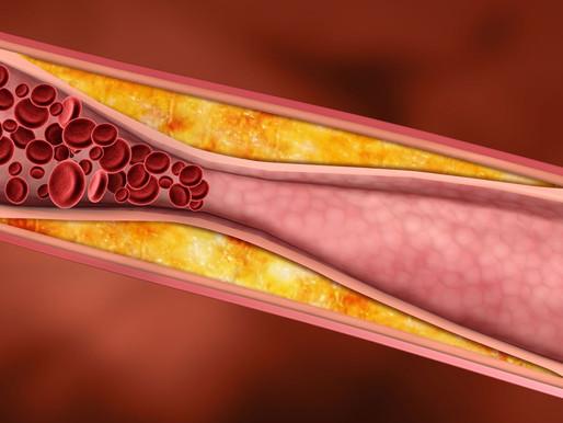 Hipertrigliceridemia predictor de ateroesclerosis subclínica