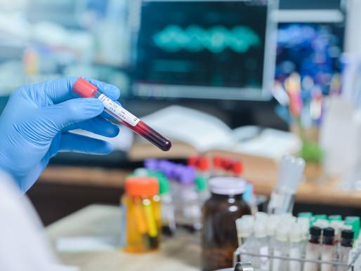 Nicotamida en el tratamiento del VIH