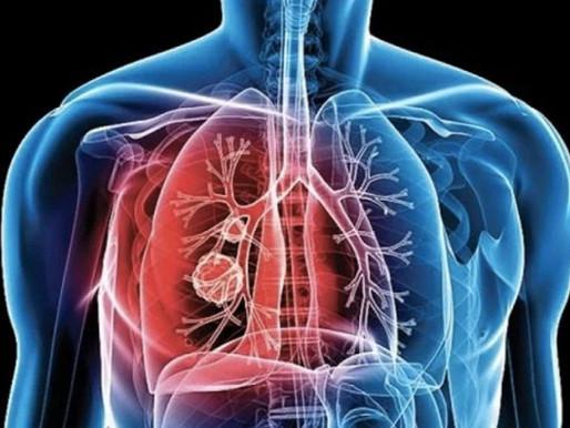 Día Mundial de la tuberculosis: avances en el diagnóstico por el Laboratorio