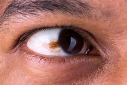 Cáncer de ojo