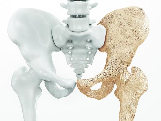 Medicamentos para la osteoporosis secuencial