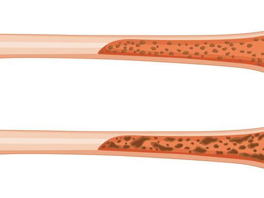 Nuevas guias de manejo de osteoporosis (AACE)
