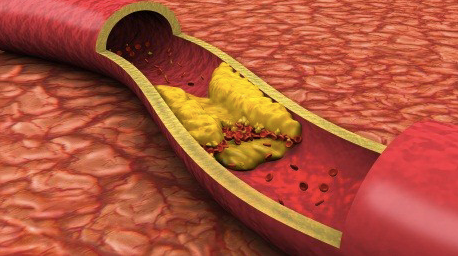 Dislipidemia aterogénica y COVID-19