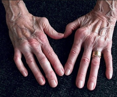 Artritis reumatoide: diagnóstico y tratamiento