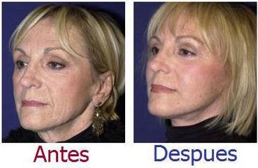Hilos tensores en Zaragoza, antes y después