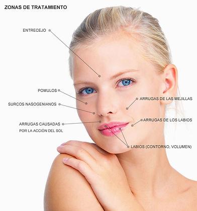 Bioplastia facial en Zaragoza