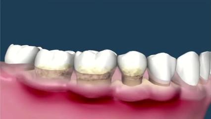 Limpeza Dental