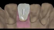 Implantes dentários unitários
