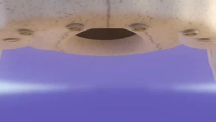 Elevação do seio maxilar