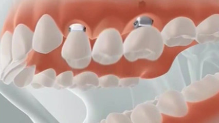 Ponte sobre implante dental