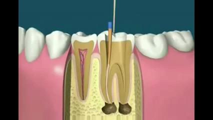 Endodontia