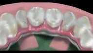 Próteses híbrida sobre implantes dentários