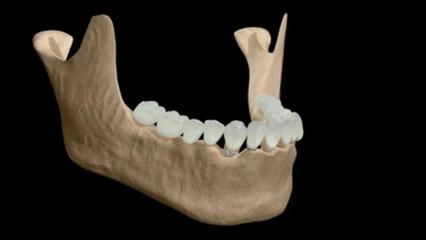 Próteses fixas sobre implantes dentários